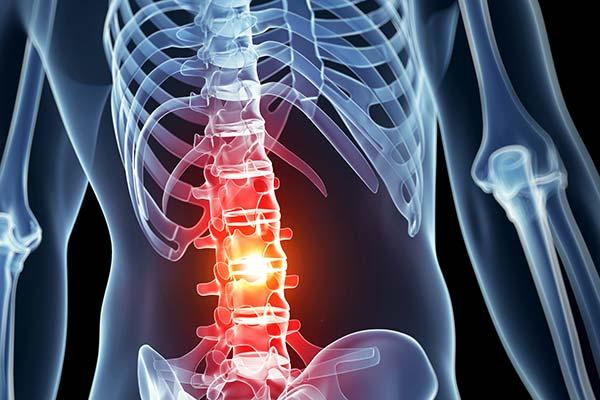 spinal injury attorneys sacramento